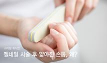 젤네일 시술 후 얇아진 손톱, 왜 이런 거죠?