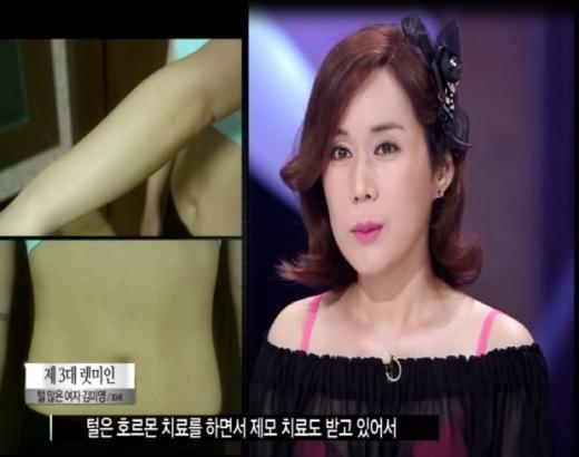 렛미인3 '털 많은 여자' 김미영, 털은 어떻게 없앴나?