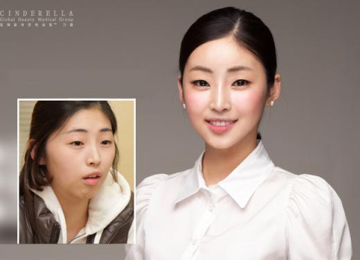 ▲아귀녀에서 김연아 닮은꼴로 변신했다며 방송에 출연했던 김소영씨(제공=신데렐라성형외과)