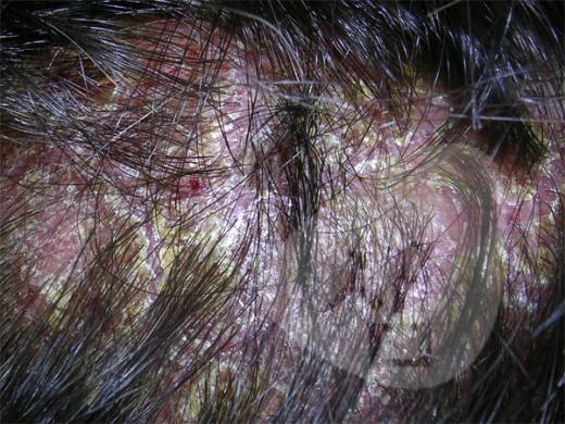 벚꽃구경? 지루성피부염 환자들에겐 '그림의 떡'