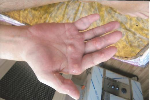 ▲통풍환자의 손