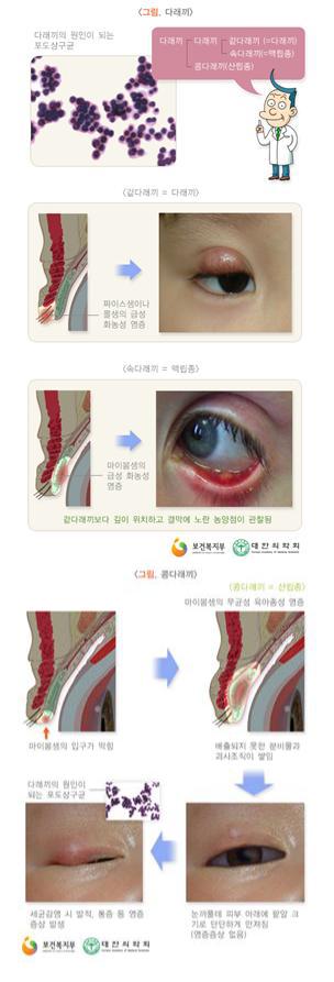 '눈다래끼' 앓고 있다면 렌즈는 잠시 빼두세요