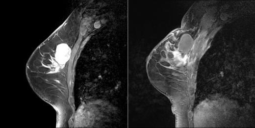 ▲ 유방암 혈관내치료와 하이푸 시술 병행 전후