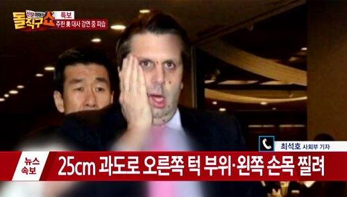 '리퍼트 미국 대사 피습' '미대사 피습' /사진=채널A 신문이야기 돌직구쇼 캡처