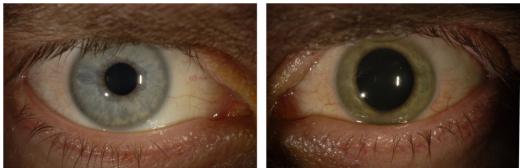 이안크로지어 씨의 에볼라 바이러스 발생 전 푸른색 눈(왼쪽)과 발생 후 초록색으로 변한 눈. /사진=미국 NYT 홈페이지 캡처