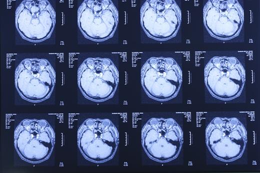 '환절기 뇌졸중' 사진은 기사 내용과 무관. /자료사진=이미지투데이