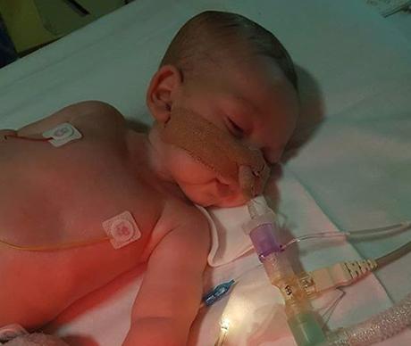 英 희소병 아기 찰리 부모. 미토콘드리아결핍증후군(MDS)이라는 희소병을 앓고 있는 영국 아기 찰리 가드. /사진=찰리스 파이트 홈페이지