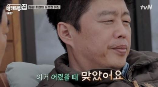 김희원이 입술 흉터에 얽힌 추억담을 고백했다. /사진=tvN 방송캡처