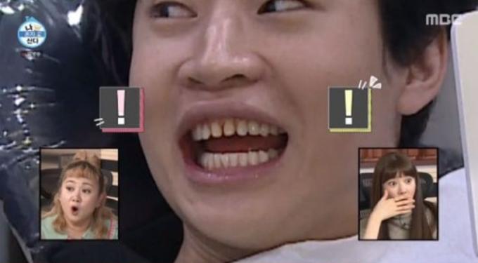 가수 헨리가 라미네이트를 떼어낸 치아를 공개했다. /사진=MBC '나혼자 산다' 캡처