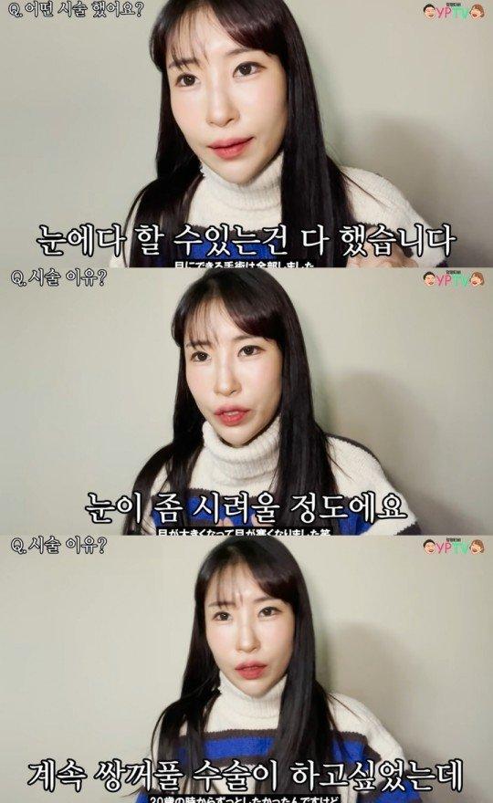 """개그맨 이세영 최근 쌍꺼풀 수술을보고 … """"복합체 극복"""""""