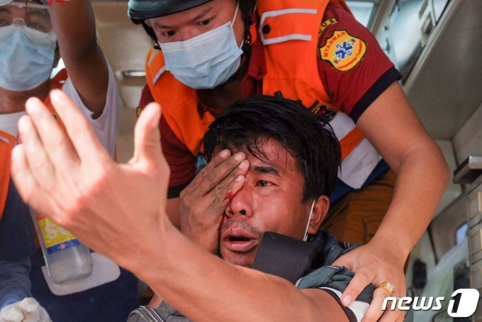 20일(현지시간) 미얀마 만달레이에서 군사 쿠데타를 규탄하는 시위대가 경찰의 고무탄에 맞아 부상당한 눈을 의료진의 치료를 받고 있다. © AFP=뉴스1 © News1 우동명 기자
