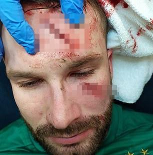 슬라비아 프라하 골키퍼 온드레이 콜라르가 19일(한국시간) 스코틀랜드 글래스고의 아이브록스 스타디움에서 열린 레인저스와의 2020-2021 유럽축구연맹 유로파리그 16강 2차전 경기에서 후반 15분 상대 공격수의 축구화에 찍혀 끔찍한 부상을 당한 뒤 치료를 받고 있다. /사진=데일리 메일 보도화면 캡처
