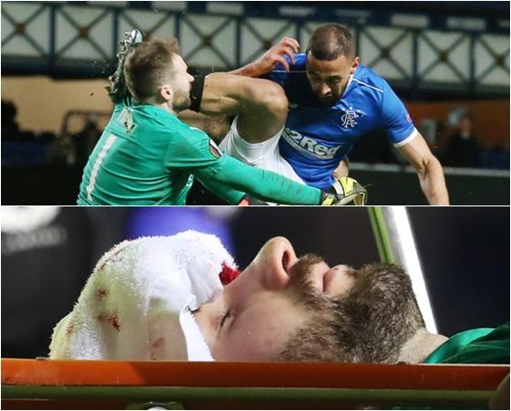 슬라비아 프라하 골키퍼 온드레이 콜라르가 19일(한국시간) 스코틀랜드 글래스고의 아이브록스 스타디움에서 열린 레인저스와의 2020-2021 유럽축구연맹 유로파리그 16강 2차전 경기에서 후반 15분 상대 공격수 케마르 루피에게 채여(위) 끔찍한 부상을 당한 뒤 들것에 실려 경기장을 빠져나오고 있다(아래). /사진=로이터