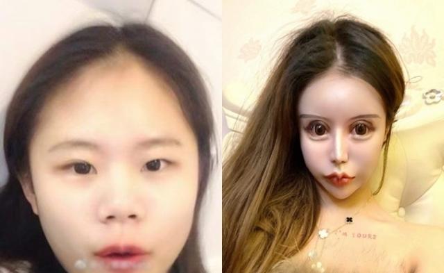 13세부터 16세까지 3년간 성형수술만 100번을 한 중국 여학생이 화제를 모았다. 사진은 수술 전(왼쪽)과 후의 모습. /사진=웨이보 캡처