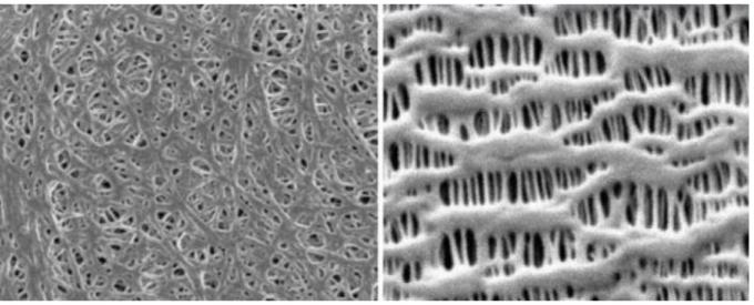 전자현미경으로 본 습식 분리막(좌)와 건식 분리막(우)의 결정 구조./사진=SKIET