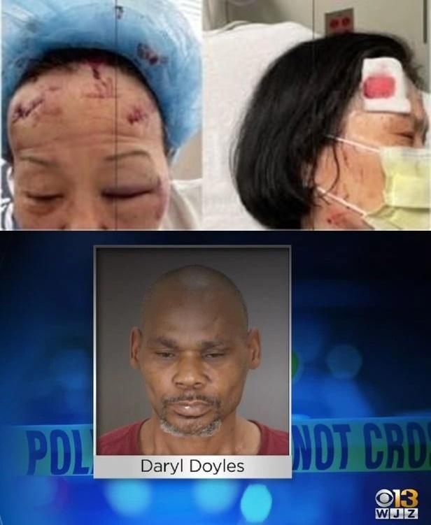 미국에서 한인 등 아시아계를 향한 무차별적 범죄 수위가 도를 넘어서고 있다./사진=미 볼티모어 지역방송 WJZ 갈무리 캡쳐, 뉴스1