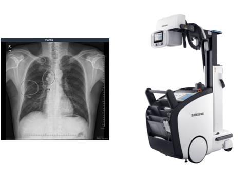 뷰노는 삼성전자의 이동형 디지털 엑스레이 촬영 장비 'GM85'에 인공지능(AI) 기반 흉부 엑스레이 영상 판독 보조 솔루션 '뷰노메드 체스트 엑스레이'를 탑재해 국내외에 판매하는 계약을 맺었다고 25일 밝혔다./사진=뷰노