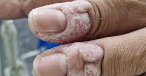 이재명 경기도지사가 20일 SNS에 올린 코로나19 현장에서 사투를 벌이는 어느 간호사의 퉁퉁부은 손가락. / 사진=이재명 경기도지사 SNS 캡처