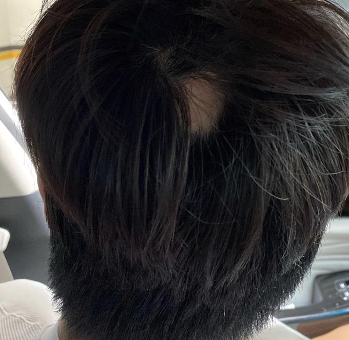 지난 3일 인민정이 남편의 원형탈모에 대해 속상함을 토로했다. 사진은 이날 공개된 김동성의 머리 모습. /사진=인스타그램 캡처