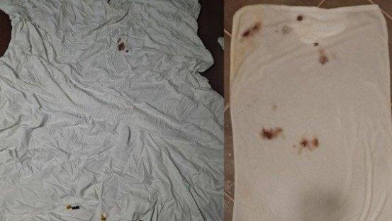 '호텔서 코피 묻힌 이불'… 세탁하니 지워지는데 32만원 배상 요구?